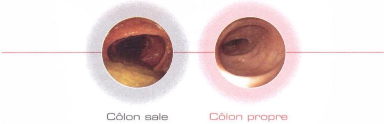 colon sale colon propre