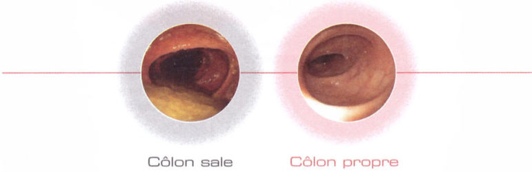 colon sale colon propre
